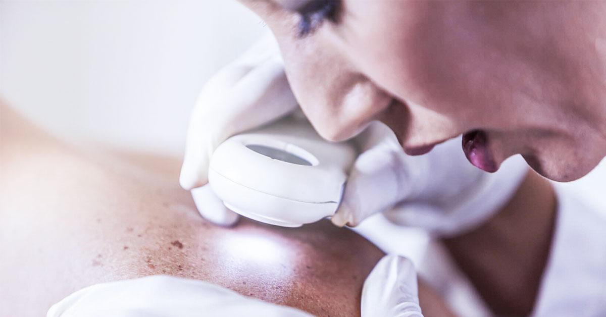 Câncer de pele: atenção no verão, cuidado o ano todo